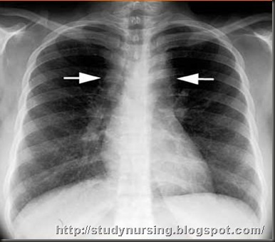 Enlarged spleen x ray